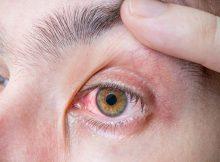 apakah_glaukoma_bisa_disembuhkan