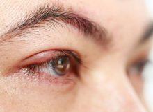cara_mencegah_glaukoma